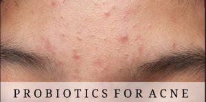 Probiotics for acne
