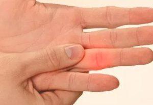 Jammed Finger